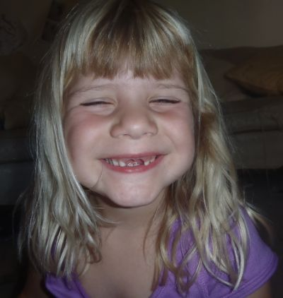 Kara smiling without her two front teeth.